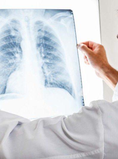 Pľúcne chlamýdie: Na bežné antibiotiká neodpovedajú